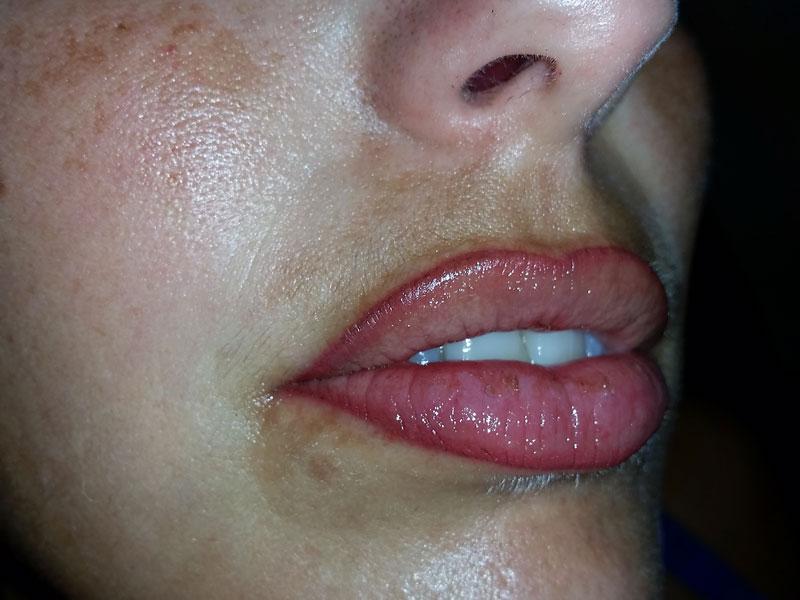 Maquillage Permanent Docteur Patural Specialiste A Saint Etienne