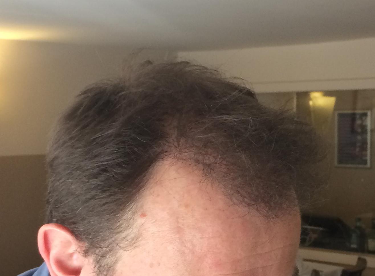 Implants capillaires greffe de cheveux docteur patural for Prix traitement remontee capillaire